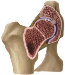 Arthritis-image